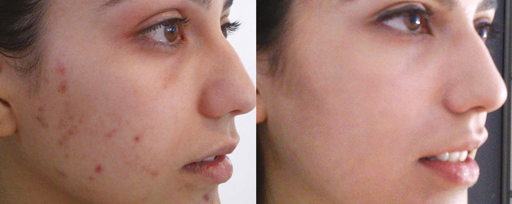 Bilderesultat for neostrata peel